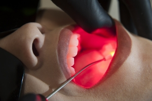 Laserterapia na odontologia